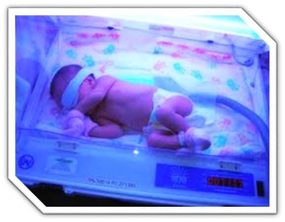 اجاره دستگاه زردی نوزاد درحکیمیه